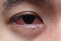 Why do we get bloodshot eyes, and how can we prevent it?