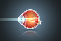 Astigmatism - Causes, Symptoms and Treatments