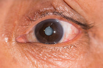 Cataracts - Causes, Symptoms and Treatments